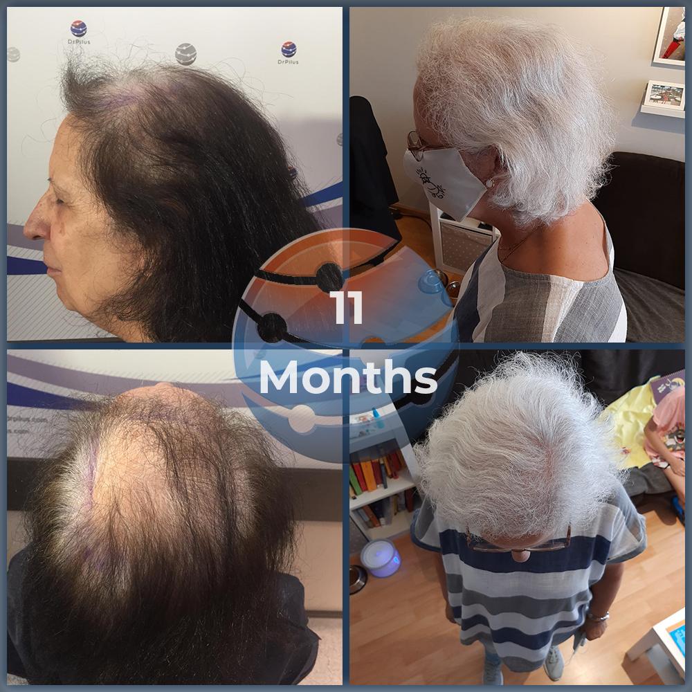 11 months after transplant